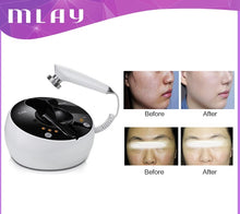 Load image into Gallery viewer, Mini RF Skin Tightening Lifting Machine Radio Frequency Facial Beauty Care Profashional Device For Rejuvenation Anti-Aging, Skin Lifting & Tightening Wrinkles, By Mlay