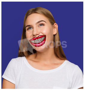 Mouth with Braces