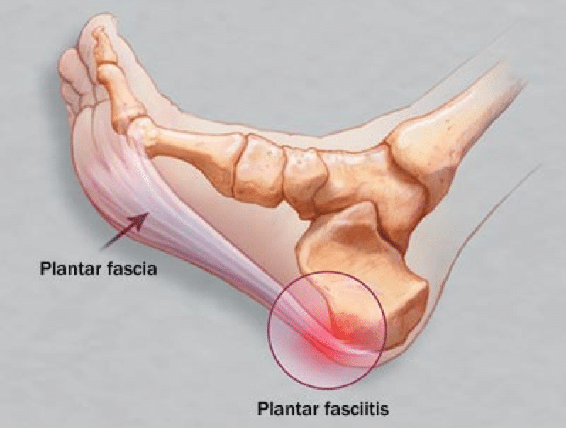 Diagram of Plantar Fasciitis - What to Look for in Plantar Fasciitis Shoes