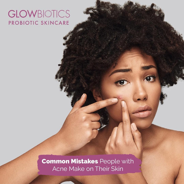 Common Mistakes People with Acne Make on Their Skin