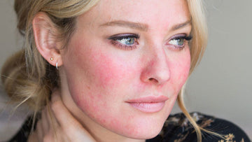 Balancing Rosacea & Redness