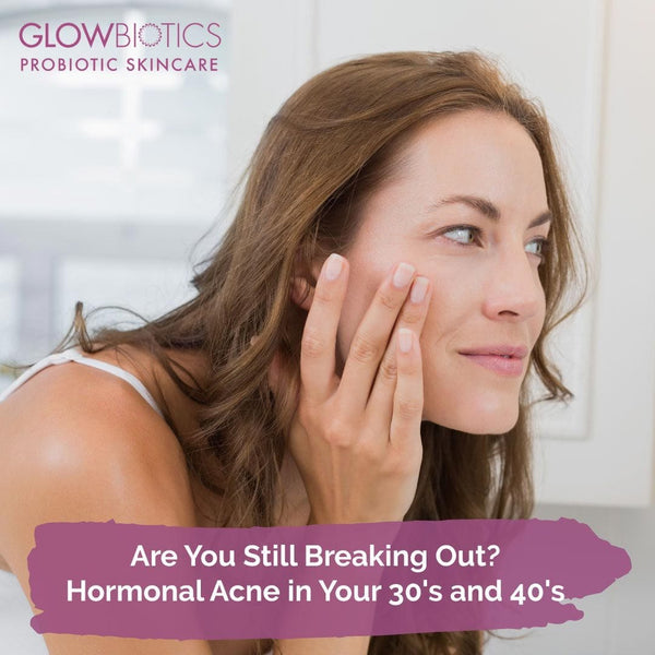 Are You Still Breaking Out? Hormonal Acne in Your 30's and 40's