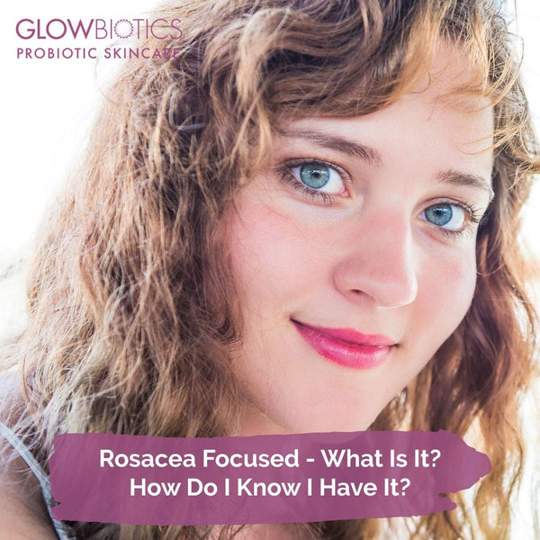 Rosacea Focused - What Is It? How Do I Know I Have It?