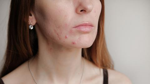 Acne breakout due to mask wearing