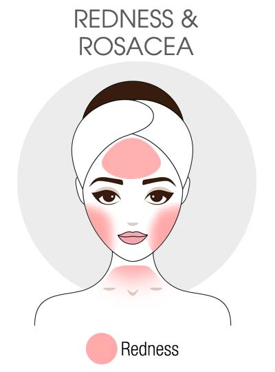Redness & Rosacea