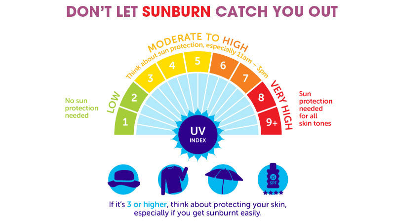 Do not let sunburn catch you out