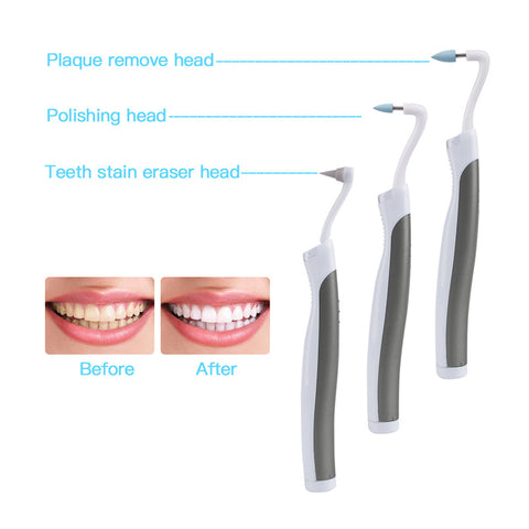 Sonic Tooth Stain Eraser With Plaque Remover