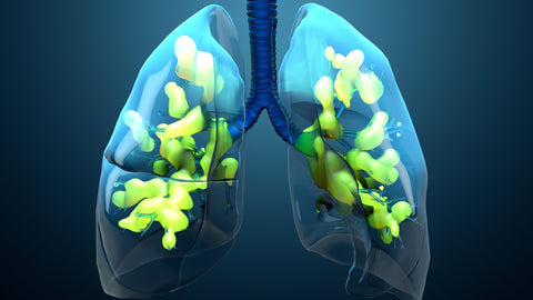 COVID-19 can lead to acute respiratory distress syndrome (ARDS) due to pulmonary damage from cytokine storms.