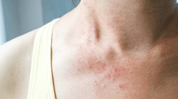 Histamines and Skin Conditions