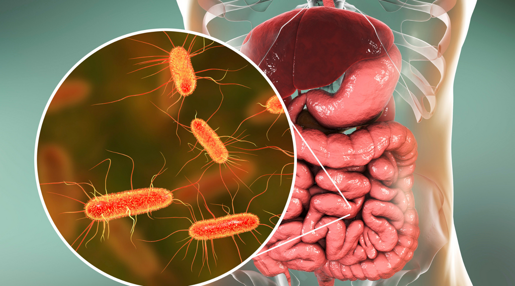 Gut microbiome and psoriasis