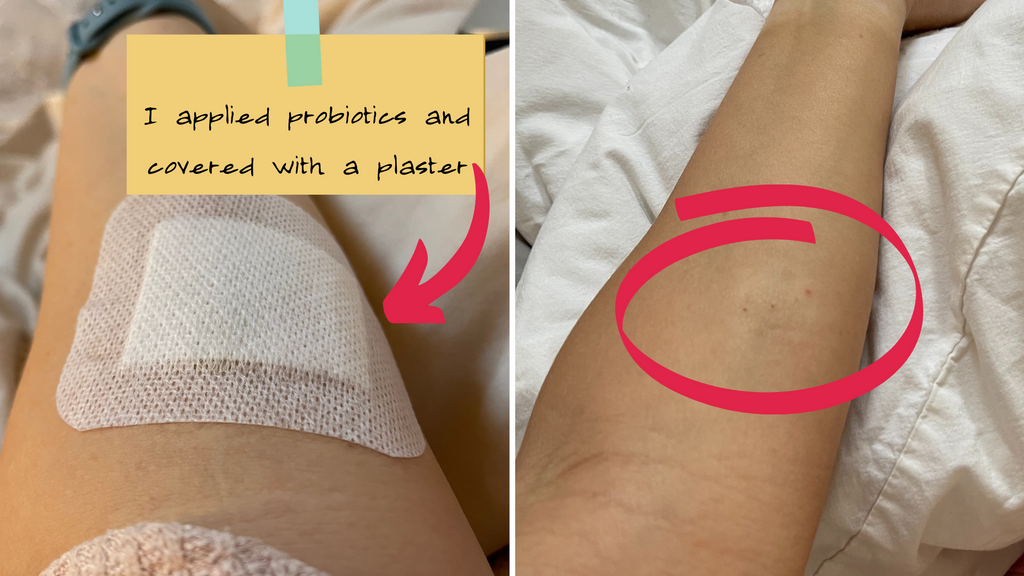 probiotic applied to skin