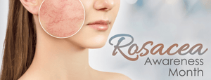 Rosacea Skin 101: What You Can Do Naturally Through A Holistic Approach to Control the Symptoms