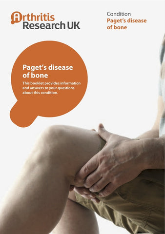 Pagets Disease of Bone