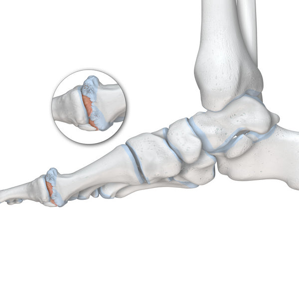Hallux Rigidus - Arthritis of the Big Toe