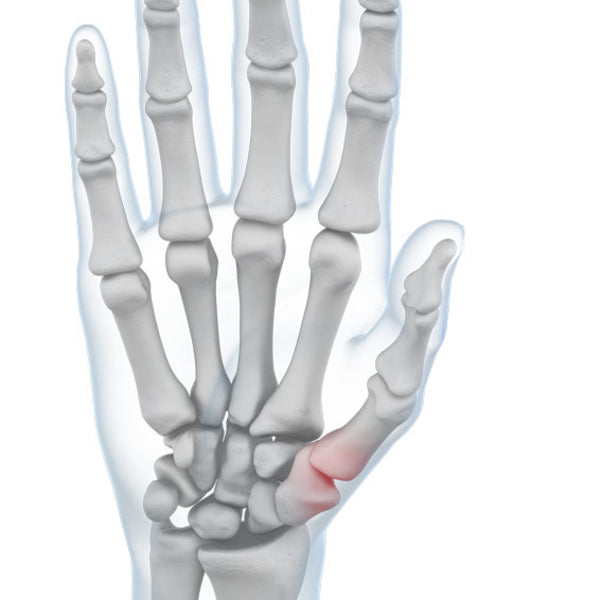Pain in the Thumb Joint
