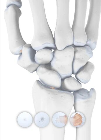 Wrist Osteoarthritis - Arthritis in the Wrist Joint