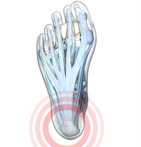 Diagram of foot highlighting in red haglund's deformity on the heel