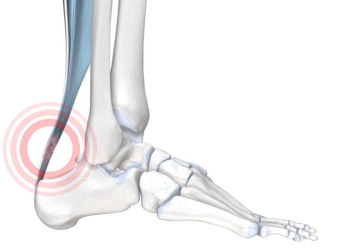 Achillodynia - The Achilles Tendon Pain Syndrome
