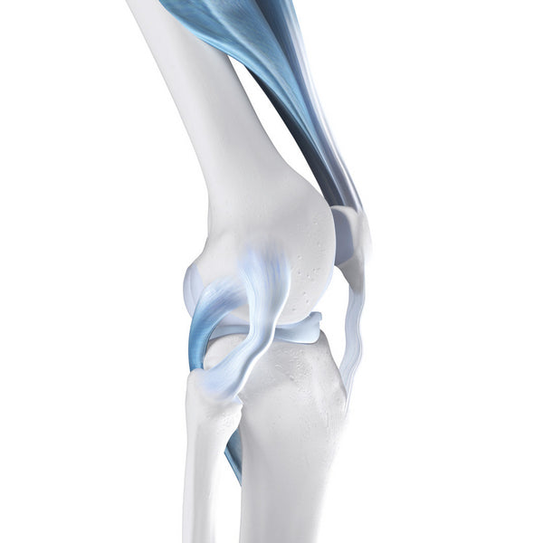 Knee joint instability