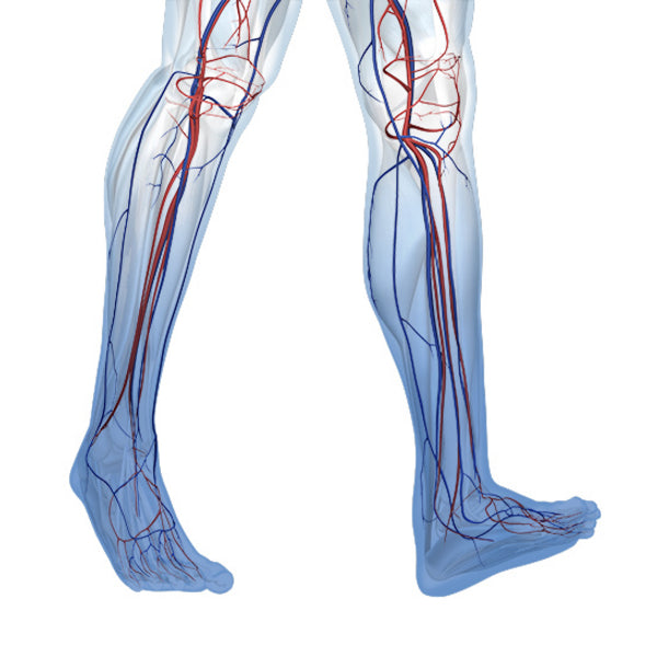 Chronic Venous Insufficiency (CVI) - Causes, Diagnosis and Treatment