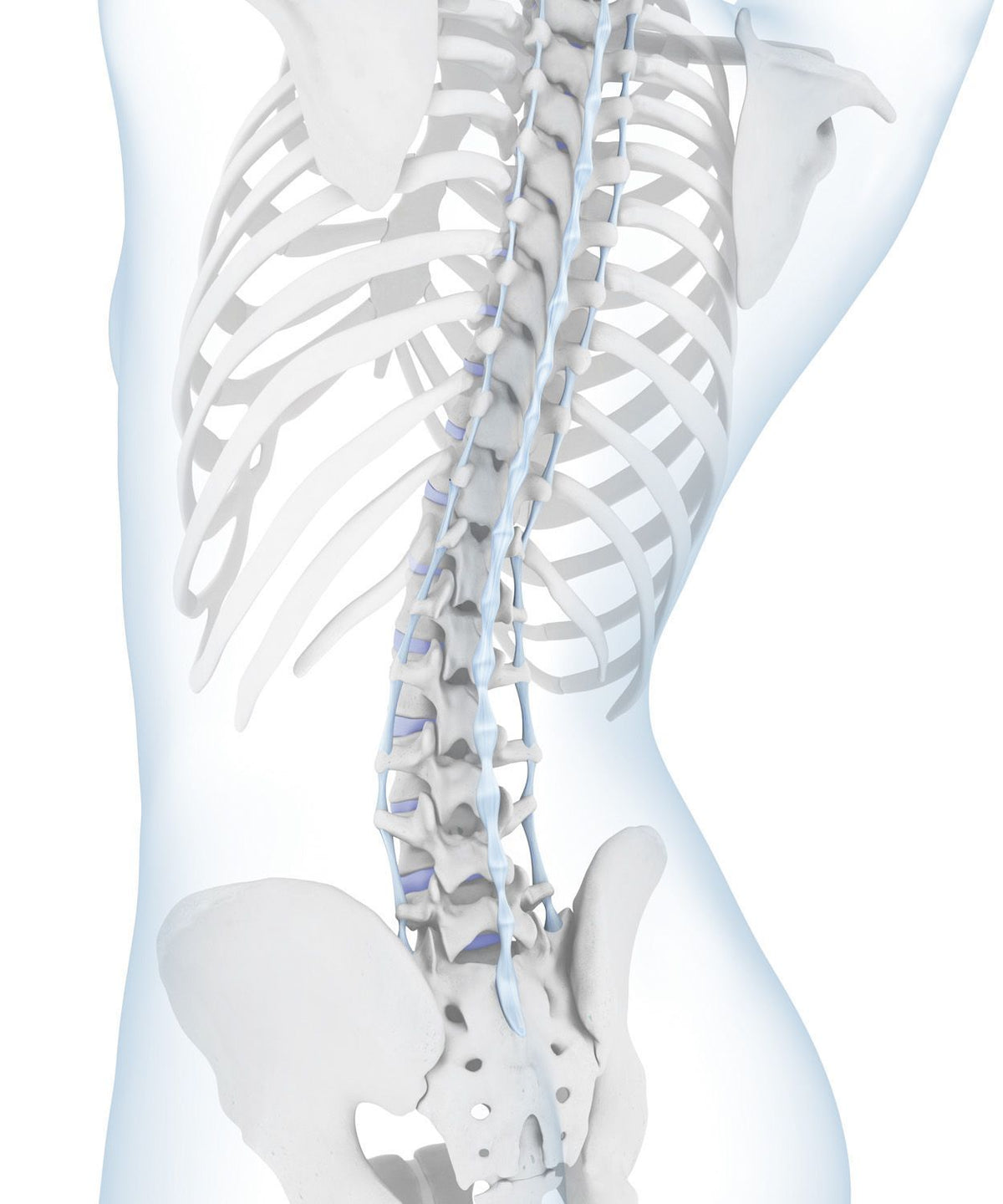 Hyperlordosis - Hollow Back