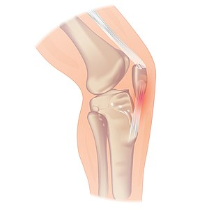 Image of the knee ligaments and joints including the Patellar Tendon.