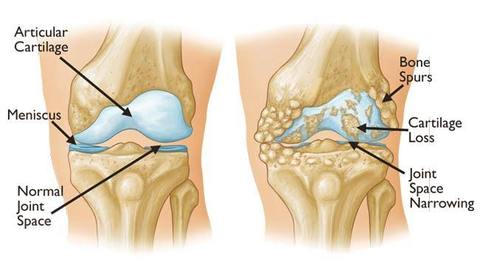 internal damage of the knee joint