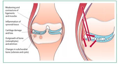Osteoarthritis in the knee internal view