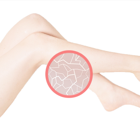 Zoomed in image of dry skin on legs