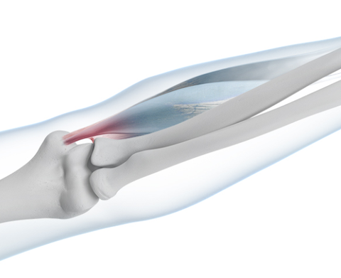 Skeletal diagram of the elbow highlighting in red the areas of pain