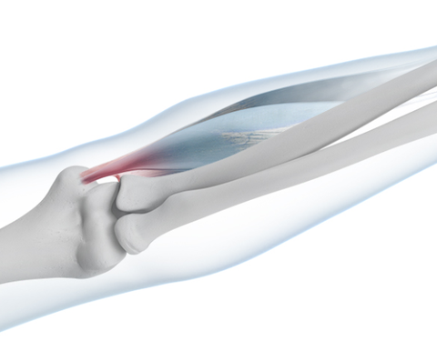 Skeletal diagram highlighting in red the area on the elbow where pain will occur