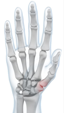 Skeletal image of hand highlighting pain in the thumb joint