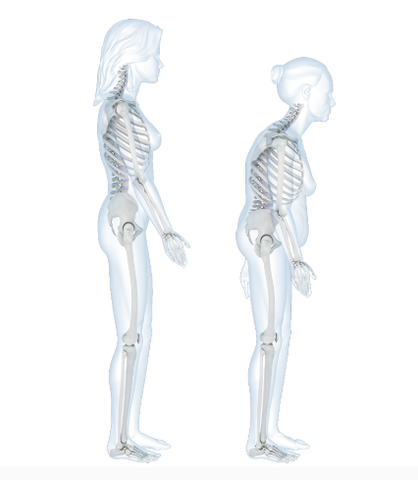 Skeletal diagram with two people, one standing straight and one with Dowagers hump