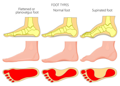 foot types and insoles needed