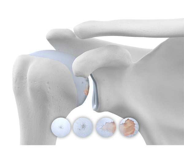 Image highlighting shoulder wear and tear associated with osteoarthritis