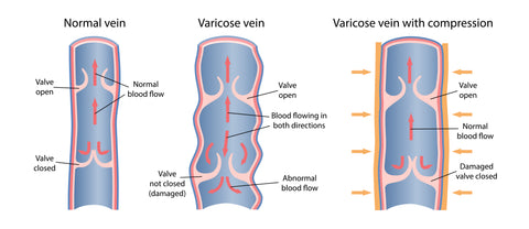 how do you fix varicose veins