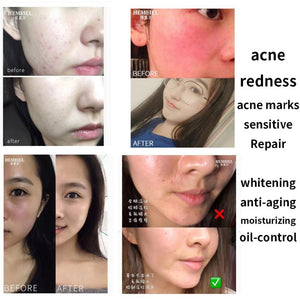 Skin Care Face Repair Cream Anti-Wrinkle Remove Redness Face Moisturizing Cream Anti-Aging Facial Whitening Cream Korean