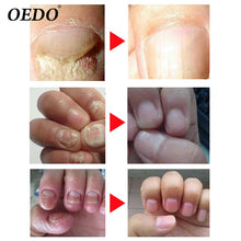 Load image into Gallery viewer, 2Piece/lot  Nail Treatment Essential oil Hand and Foot Whitening Toe Nail Fungus Removal Infection Feet Care Polish - moonaro
