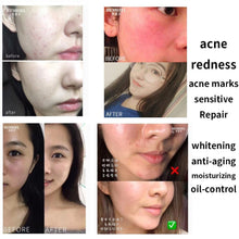 Load image into Gallery viewer, Fast Repair Myogenic Rejuvenation Facial Serum Moisturizing Hydrating Face Whitening Essence Cactus Anti Aging Serum