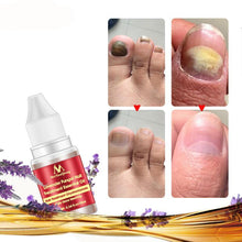 Load image into Gallery viewer, Lavender Fungal Nail Treatment Essential Oil Nail Promote Nails Grow Healthy Nail Treatment Onychomycosis Foot Care