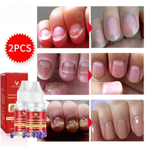 Nail Repair Essence Serum Fungal Nail Treatment Remove Onychomycosis Toe Nail Nourishing Brightening Hand And Foot Care Essence