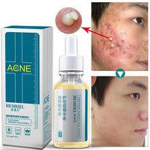 Load image into Gallery viewer, Shrink Pores Serum Acne Treatment liquid Moisturizing Face Serum Anti-Acne Whitening Plant Cream Korean Pimple Skin Care
