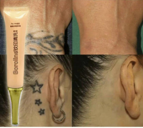 Permanent Tattoo Cream Removal