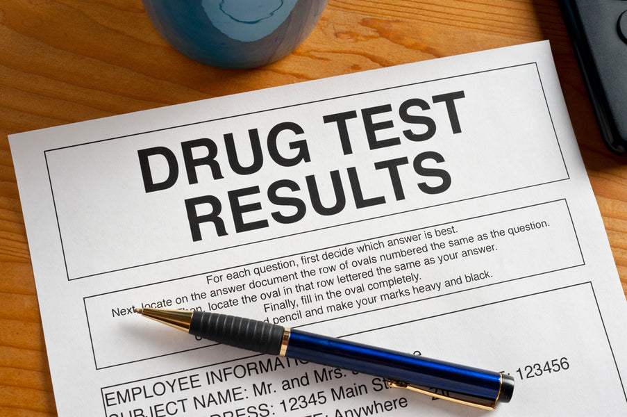 CBD products may be yielding cannabis-positive urine drug tests.