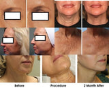 AUGUST DEALS One Session of Dermapen Skin Needling Only $149.00 (not $350)
