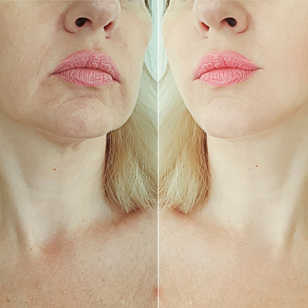Special January Deal HIFU Full Face & Neck Lift & Tightening Treatment Only $499 (not $2,499)  BUY UP TO 2