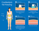SEPTEMBER SPRING DEALS Fat Freezing Cryolipolysis on Two areas (2 Handles) $199 (NOT $998)