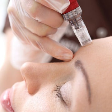 NOVEMBER Fraxelated RF Skin Resurfacing Full Face Neck And Décolletage $499 (normally $999) BUY UP TO THREE