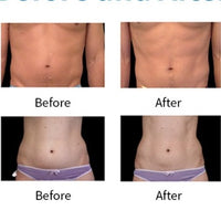 JANUARY DEALS - CelluSculpt EMS Body Sculpting Session on Chosen Body area Only $199  (not $499)) Buy up to 6 vouchers