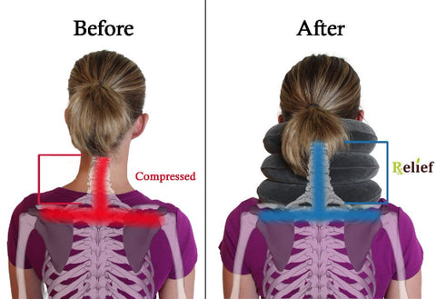 Neck Support Pillow Before and After